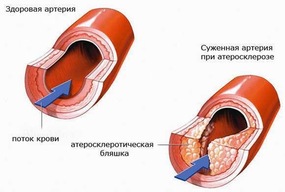 xolesterin-krupnejshaya-afera-xx-veka-2